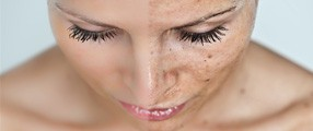 Bőrmegújító hámlasztó eljárások