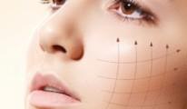 Thread lifting: bio-felszívódó szálas arc-és testkontúrozás