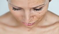 Amerikai bőrmegújító hámlasztó eljárások