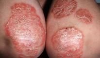 Psoriasis - Pikkelysömör kezelése